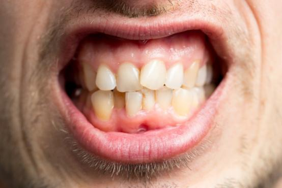 Orthodontie invisible Ixelles