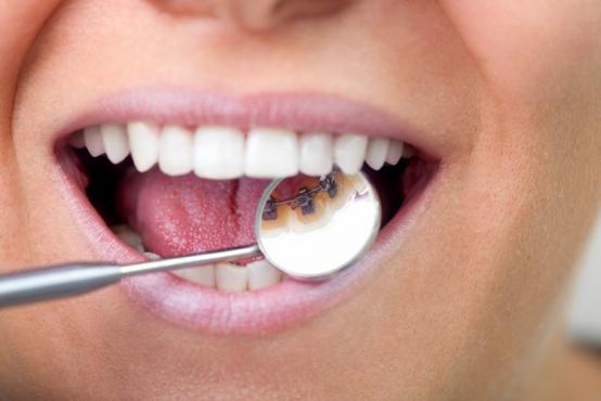 Orthodontie linguale Ixelles