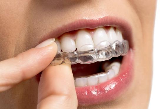 Orthodontie invisalign Ixelles