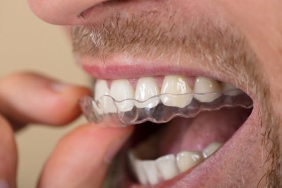 Orthodontie appareil dentaire Ixelles